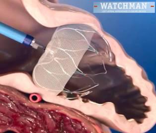 WATCHMAN ウォッチマン 経皮的左心耳閉鎖術