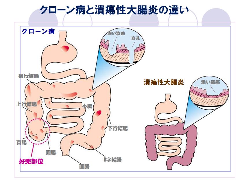 大腸 症状 炎 性 潰瘍