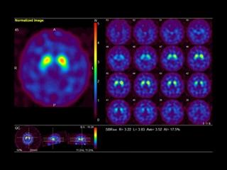 神経内科画像2